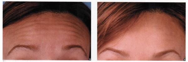 Before-After-Botox-1.jpg