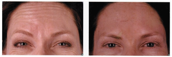 Before-After-Botox-10.jpg