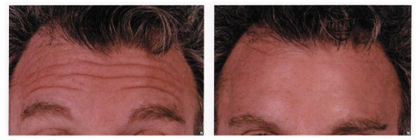 Before-After-Botox-5.jpg