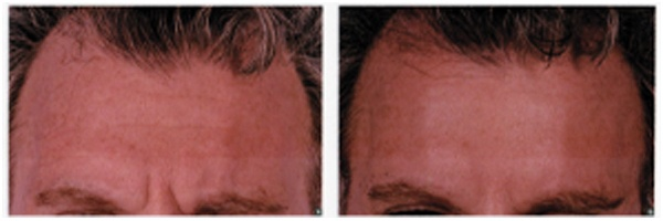 Before-After-Botox-6.jpg