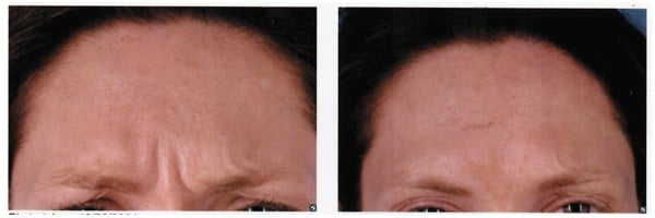 Before-After-Botox-9.jpg