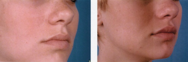 Before-After-Filler-3.jpg