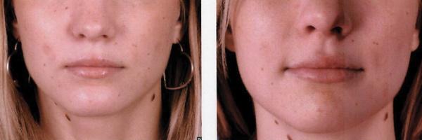Before-After-Filler-4