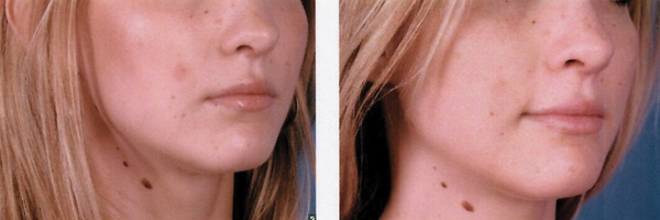 Before-After-Filler-5.jpg