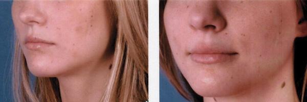 Before-After-Filler-6.jpg