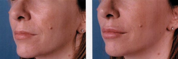 Before-After-Filler-8.jpg