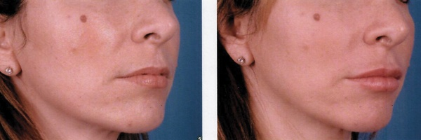 Before-After-Filler-9.jpg