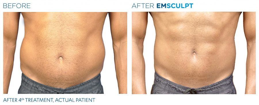 Emsculpt-before-and-after-man