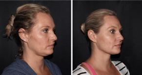 Ultherapy Before and After at Supriya Dermatology