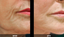 Non surgical Facelift Before and After at Supriya Dermatology