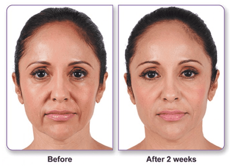 liquid face lift at Supriya Dermatology in Palm Beach and Jupiter FL
