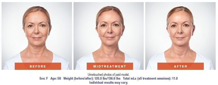 Kybella chin reduction in West Palm Beach
