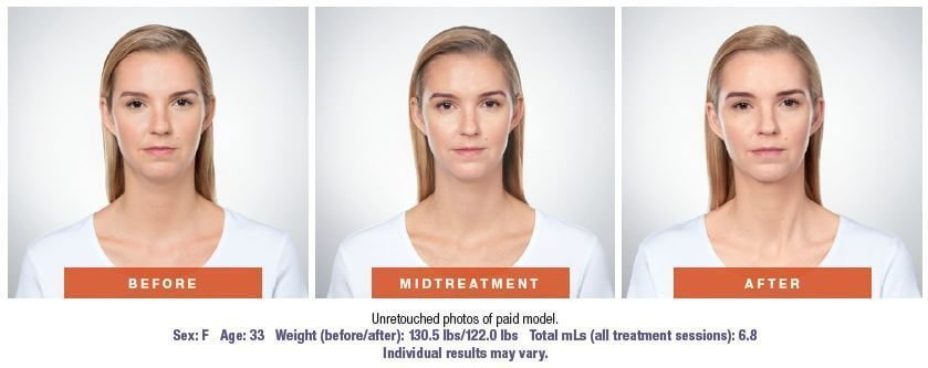 Double chin reduction in West Palm Beach