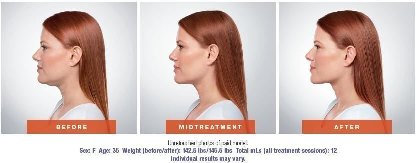 Double chin treatment in West Palm Beach
