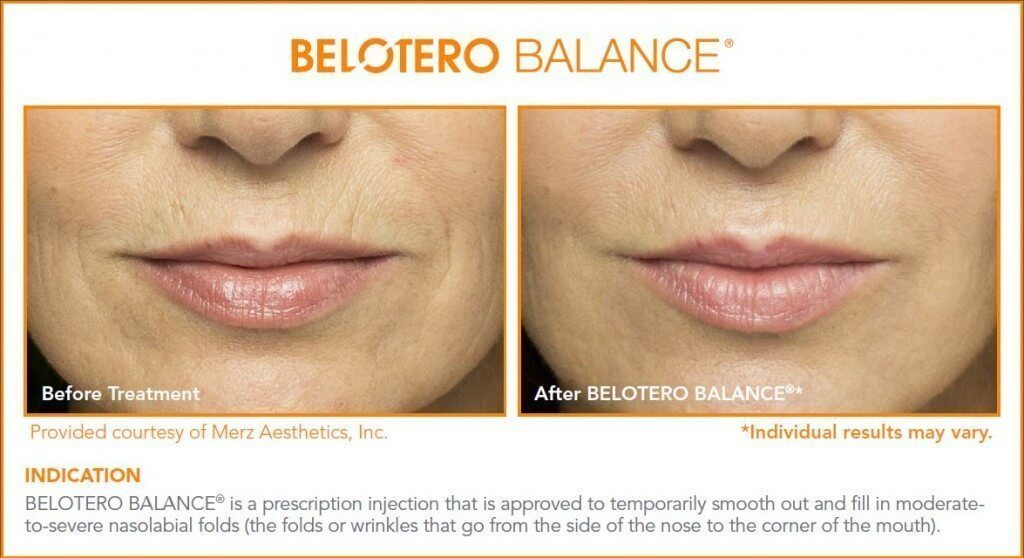 Belotero Fillers in West Palm Beach