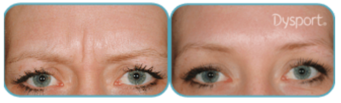 Dysport Botox in Jupiter, FL
