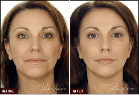 Restylane in West Palm Beach