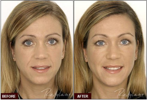 Restylane Fillers in West Palm Beach