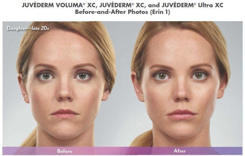 Juvederm Voluma Fillers in West Palm Beach
