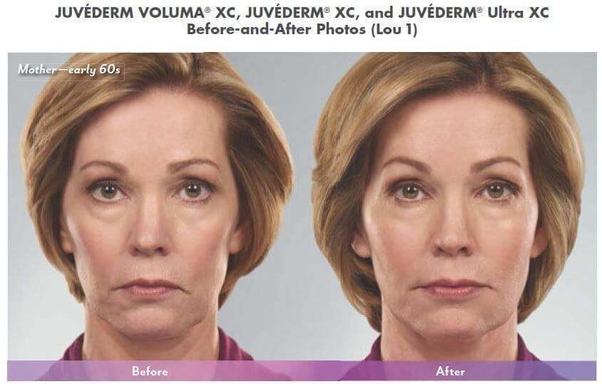 Juvederm in West Palm Beach