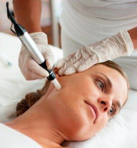 Microneedling in West Palm Beach, FL