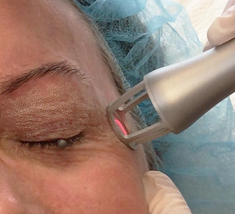 Laser treatment in West Palm Beach