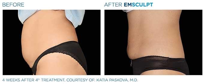 emsculpt-before-after-8