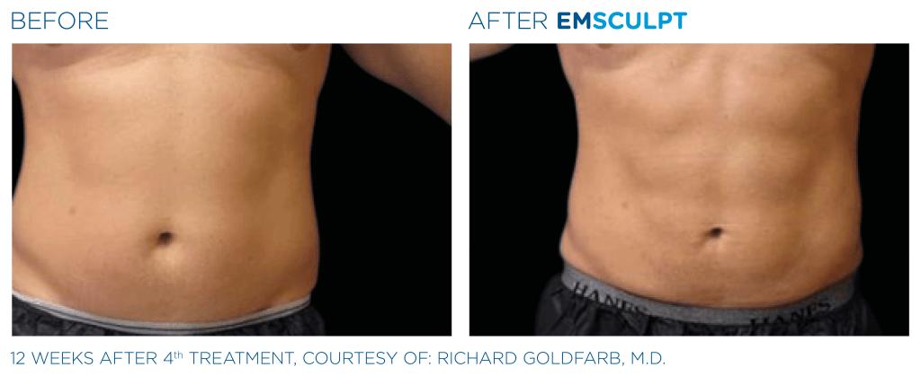 emsculpt_pic_ba-card-male-abdomen-070_enus100-1024x419-1