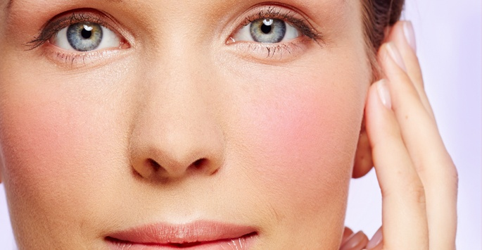 Laser Rosacea Therapy